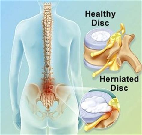 disc pain relief picture 17