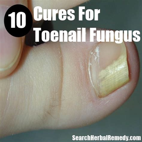 natural remedies for toenail fungus picture 6