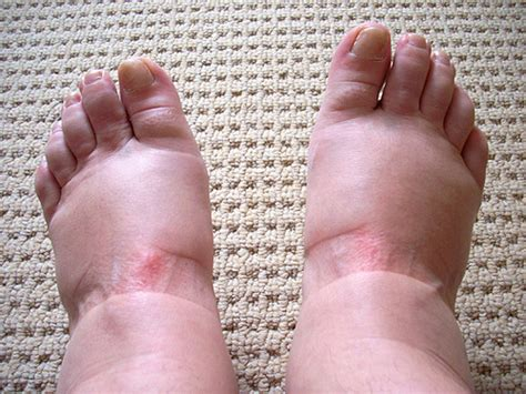 can foot fungus cause swollen nodes in legs? picture 5