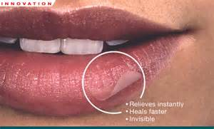 although, cold sores is one of the symptoms picture 11