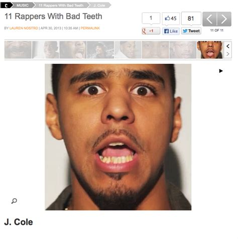 correcting crooked teeth picture 15