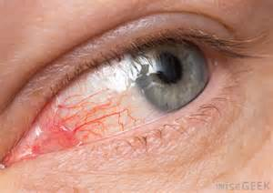 pus in the eye medical term picture 1