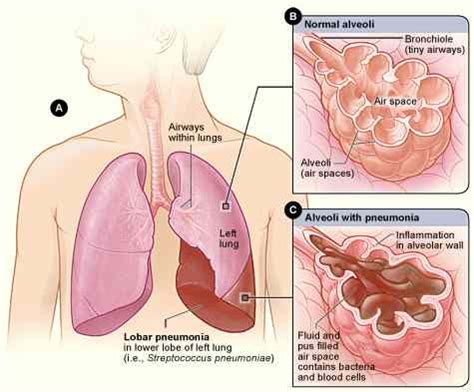lung and liver cancer picture 6