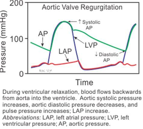 can mitral valve regurgitation may blood pressure low picture 3