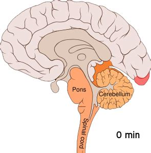 sleep disorders - parasomnia picture 9