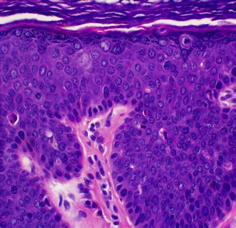 cell salts for melasma picture 13