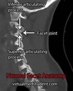 dynamic ct scan of spinal facet joints picture 5