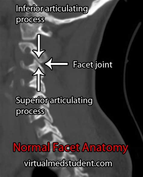 dynamic ct scan of spinal facet joints picture 4