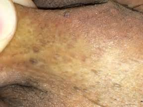 genital warts info picture 15