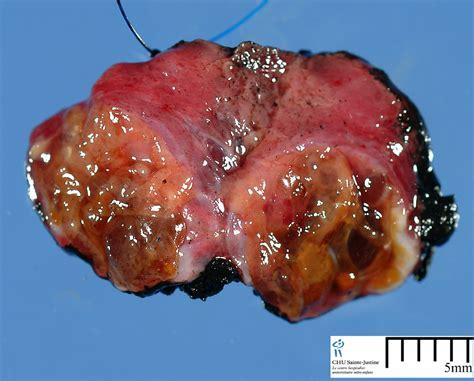 follicular cells in thyroid nodule picture 3