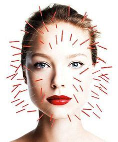 acupunture for acne picture 15