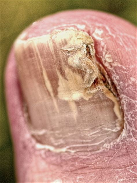 pinpoint laser for toe fungus picture 2