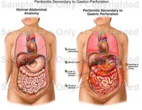 stomach bacterial infection picture 10
