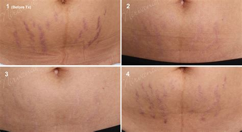 what are stretch marks picture 7