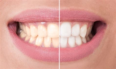 whitening picture 9