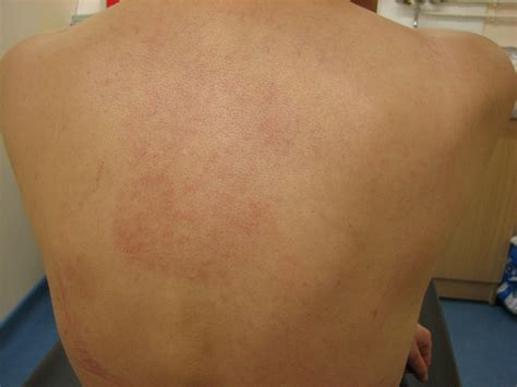 body rash hives back stomach arms picture 3