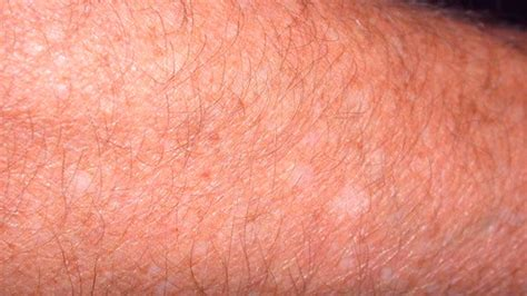 white spots on skin can be dehydraytion picture 11