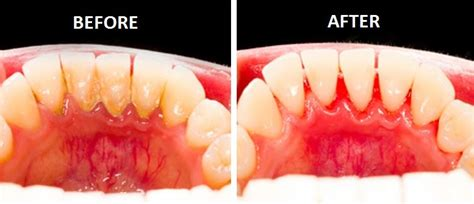 supplements that destroy tooth plaque picture 3
