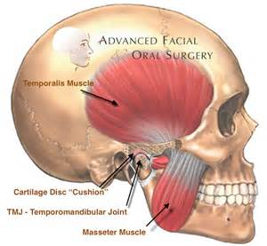 temporomandibular joint syndrome picture 3