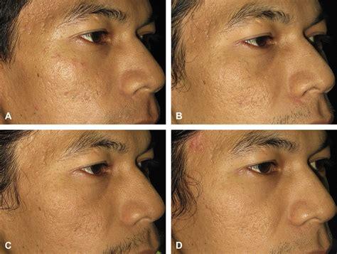 carbon dioxide acne picture 2