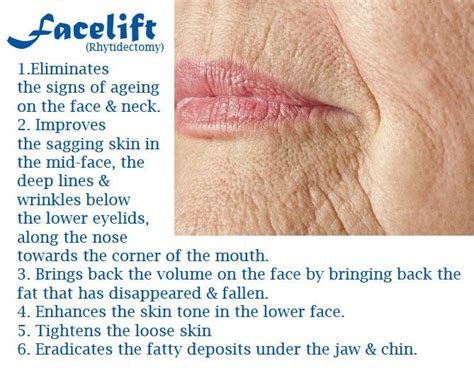 fat deposits under the lips picture 1