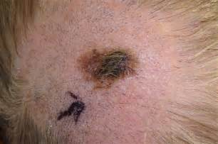 head acne as a symptom of cancer picture 2