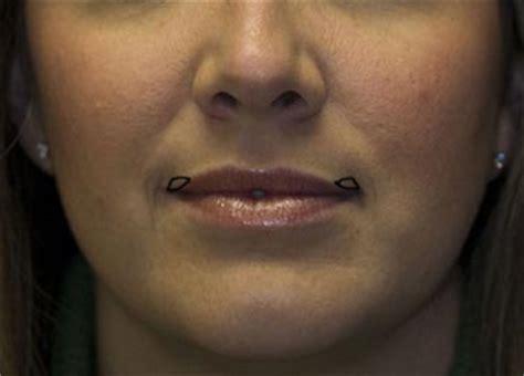 corner lip lift, uk picture 9
