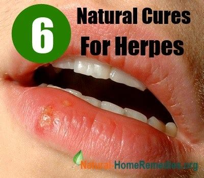 natural treatment herpes picture 1