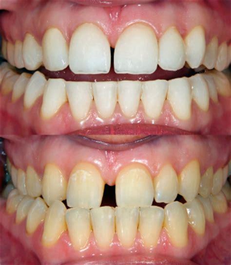 austin teeth whitening picture 6