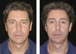 plastic surgery male enhancement picture 7