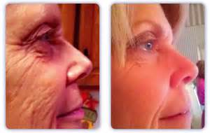 revitol anti aging before and after picture 1