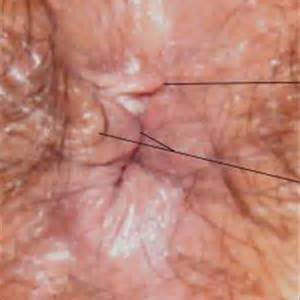 hemorrhoid relief picture 2