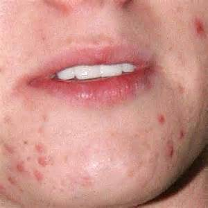 pimples picture 3