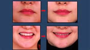 corner lip lift, uk picture 3