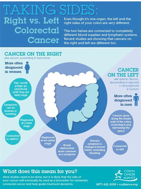 advanced colon cancer picture 7