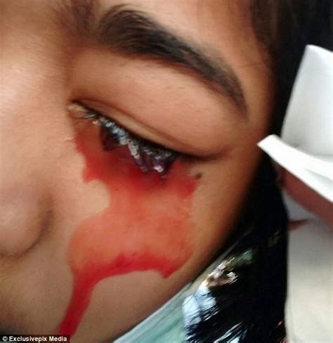 can blood penetrate intact skin picture 1