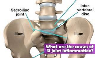 cures for sacroiliac joint picture 9