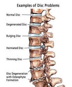 low back pain relief picture 5