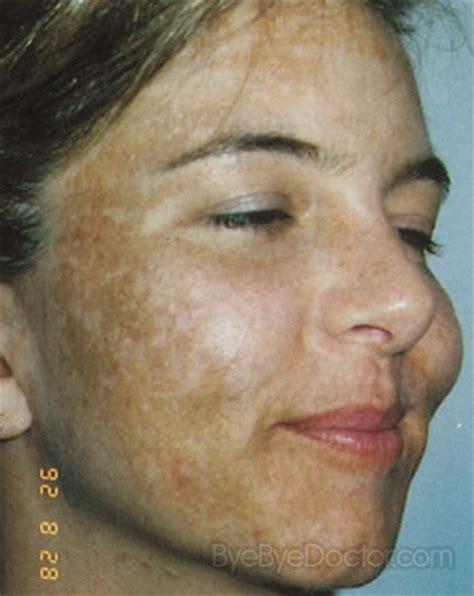 anti fungal cream cyst treatment picture 6