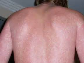 causes of shoulder stretch marks picture 9