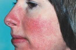 Does acne cause redness of the face picture 2
