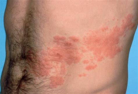 skin diseases shingles picture 2