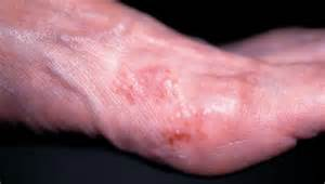 lamisil skin rash picture 6