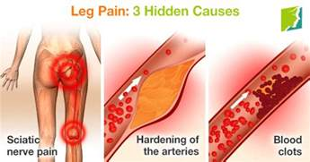 can pressure on nerves to legs cause blood clots picture 6