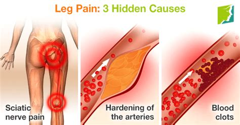 diagnosis of muscle pain in legs picture 3