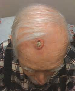 bladder squamous cell carcinoma survival rate picture 9