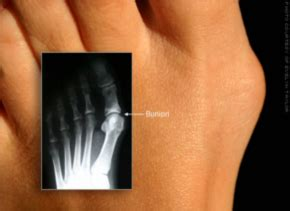 circulation and toenail fungus picture 6