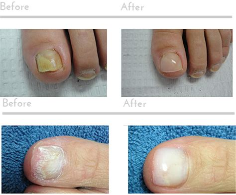 pinpoint laser for nail fungus in seattle picture 2