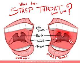 throat infection symptoms picture 17