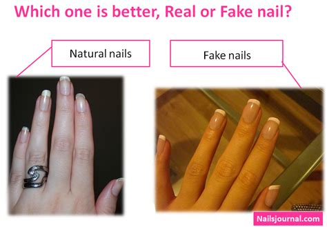 pictures of nail fungus picture 6